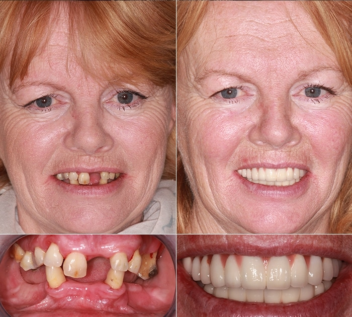 After having Dental Implants treatment