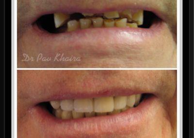 dental-implnat-centre-twyford-dental-by-pavan1