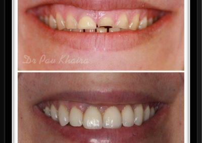 dental-implnat-centre-twyford-dental-by-pavan2