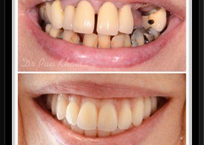 dental-implnat-centre-twyford-dental-by-pavan3