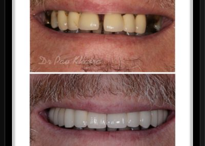 dental-implnat-centre-twyford-dental-by-pavan4