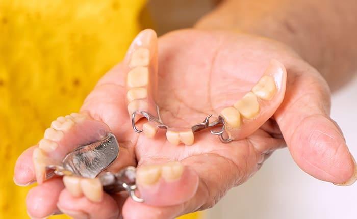 Failed implants
